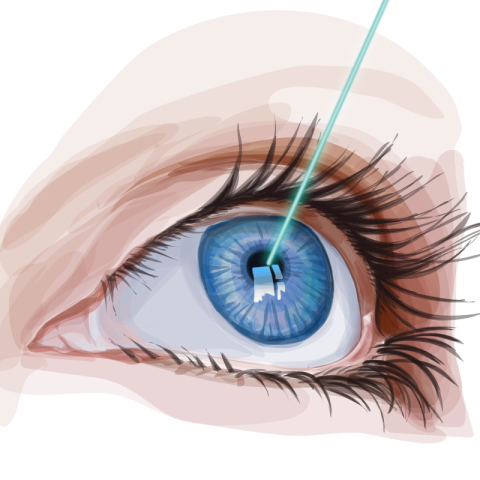 Realizamos cirurgias a LASER para correção de miopia, astigmatismo e  hipermetropia (cirurgia refrativa). Quando bem avaliadas e indicadas, estas  cirurgias ... c457b25a8c